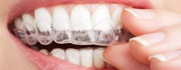 Clear Braces Cost Singapore