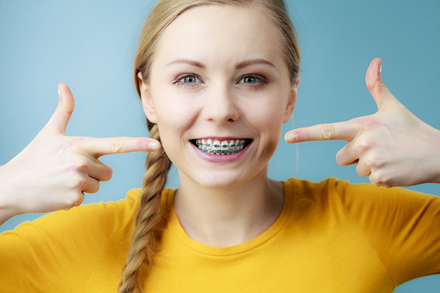 Singapore Recommended Braces