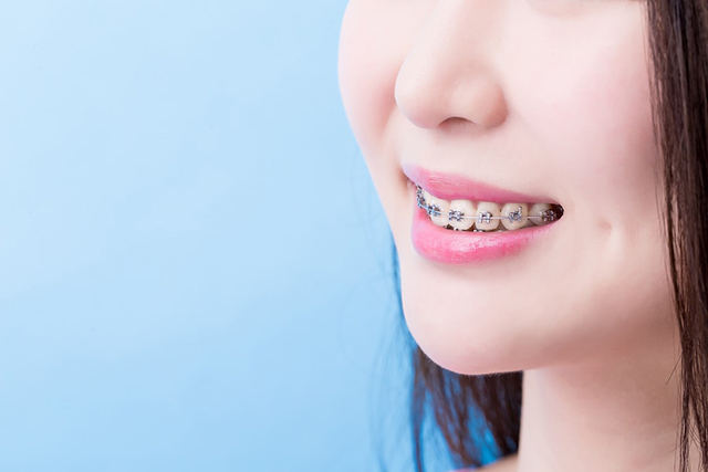good orthodontist singapore