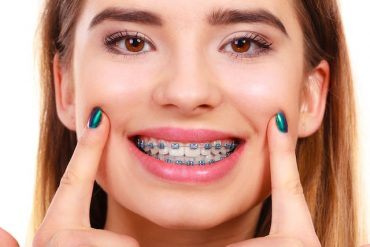 Invisalign Braces Cost Singapore