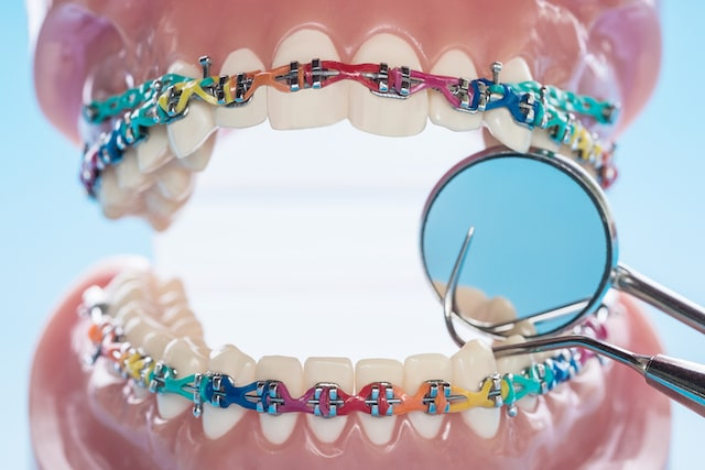 Good Orthodontist in Singapore