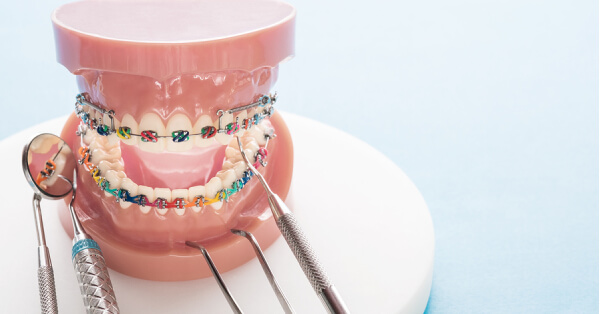 Affordable Braces, Ceramic Braces