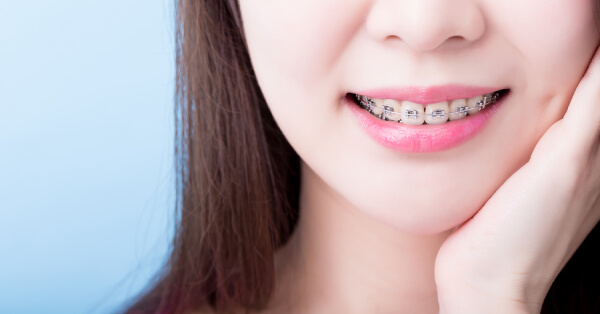Braces Cost Singapore, How Much Do Braces Cost