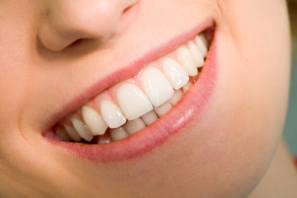 Good Orthodontist In Singapore, Braces Cost